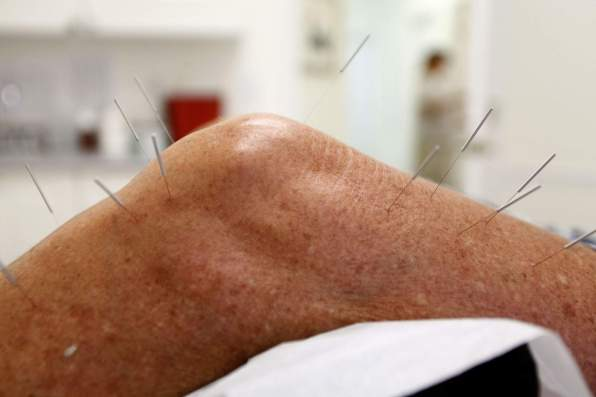 Acupuncture on leg.jpg